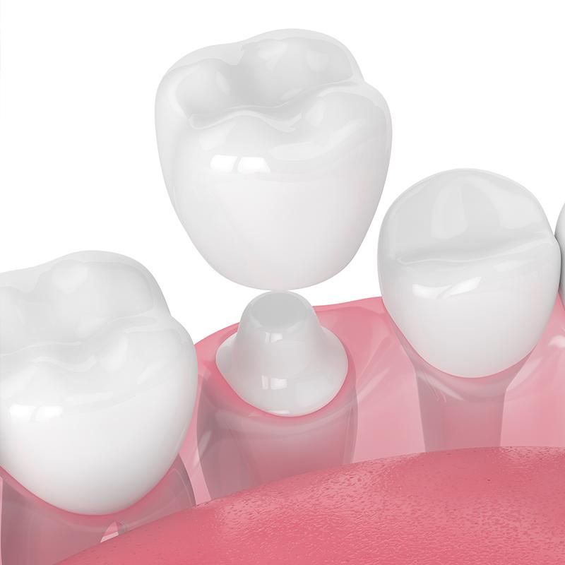 Dental Crowns Tampa FL